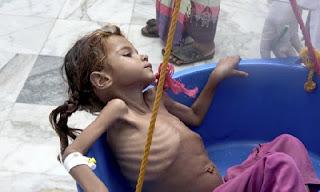 Umat Islam Yaman Alami Kelaparan di Daerah yang Dikuasai Pemberontak Syiah Houthi