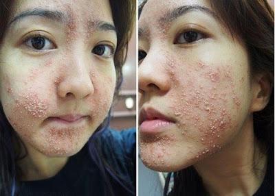 Hướng dẫn xử lý dị ứng kem trộn sẽ giúp hạn chế việc da bị hủy hoại nặng nề
