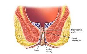 Dấu hiệu và triệu chứng của bệnh sa trực tràng
