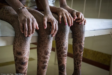 Oh No! Rare Skin Disease Leaves Brother and Sister with Scales all Over Their Bodies (Photos)
