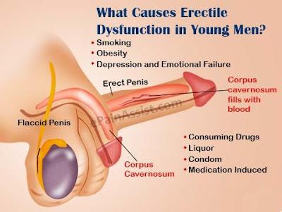 Treatment of Erectile Dysfunction in Delhi