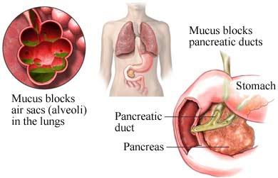 Diet Penyakit HIV/AIDS