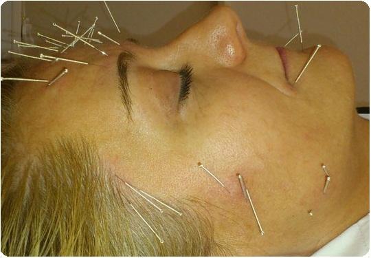 Akupuntur Facelifting Pengencangan Wajah Tanpa Bedah
