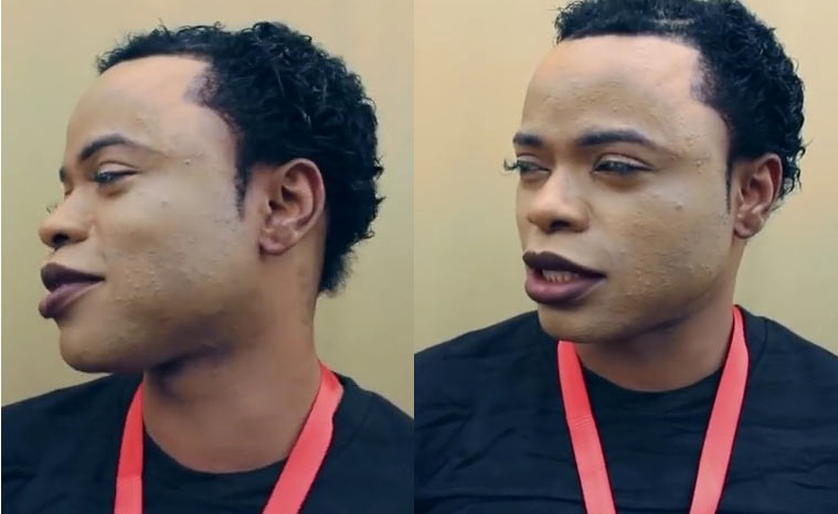 Photos: They said Lagos-based gay, Bobrisky's face has been burnt by bleaching