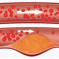 Kolesterol Tinggi, Penyebab Gangguan Jantung dan Stroke