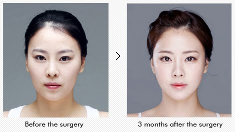 Complex Face Contouring Korea Solves Your Problem At Once
