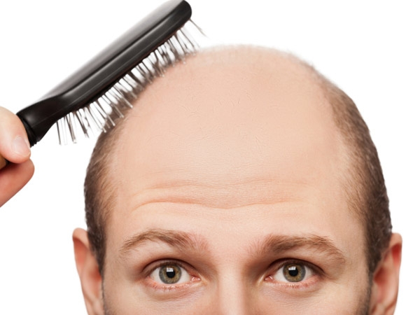 The miracle Solution for Bald head and Regrowth of hair is possible through Ayurveda and Herbs now , An Amazing and innovative idea for hair regrow on Bald Head.