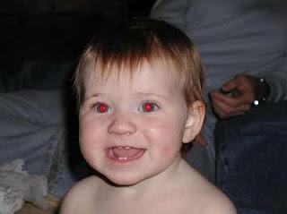 Penyebab Efek Mata Merah Dan Cara Mencegahnya Saat Di Foto