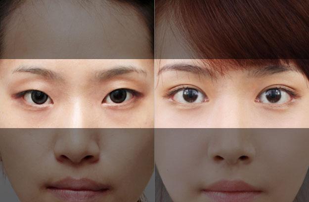 Phẫu thuật mắt 2 mí Webtretho – Địa chỉ thẩm mỹ nào uy tín