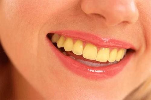 Hàm răng vàng ố, xỉn màu sẽ trắng sáng ngay lập tức với 4 mẹo này
