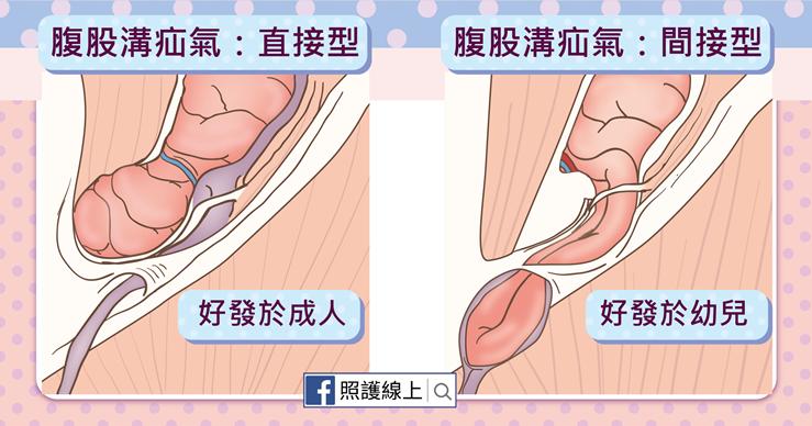 腹股溝疝氣有兩種類型:直接型與間接型腹股溝疝氣-照護線上