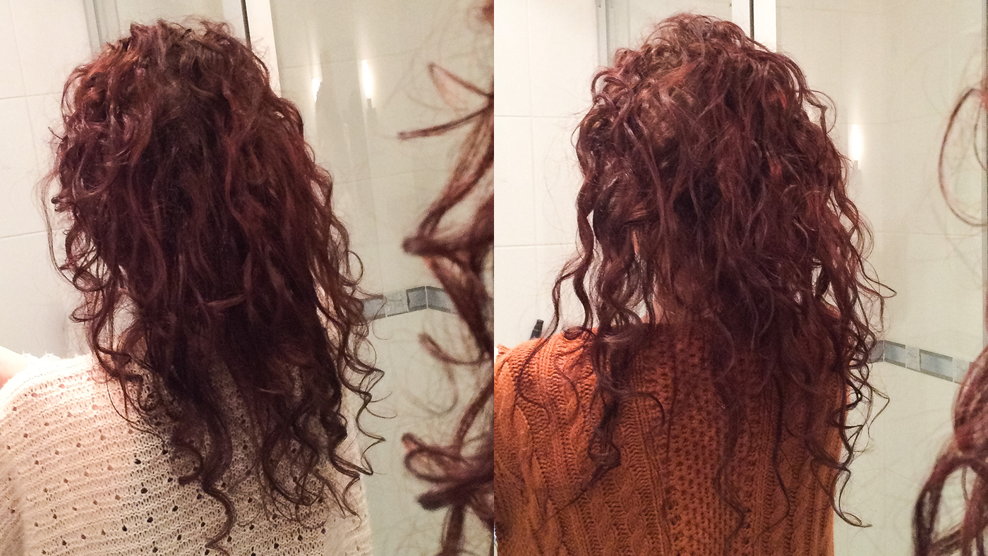 wypadanie włosów przy białaczce