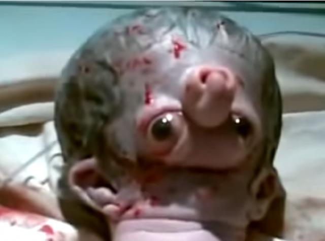 فيديو مخيف| وﻻدة طفل غريب جداً في مصر! تشوه فريد من نوعه!