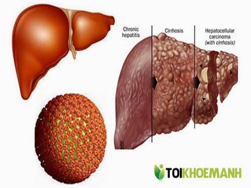 Hướng dẫn điều trị bệnh viêm gan B hiệu quả tốt nhất 2