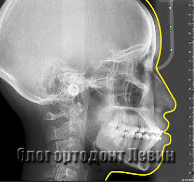 ТРГ пациента с потерей анкоража