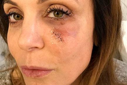 Bethenny Frankel Documents Her Skin Cancer Removal Surgery
