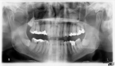 Misteri gigi meledak masih belum terpecahkan.
