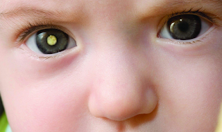 Retinoblastoma - Cancer That Attacks The Eyes of Children