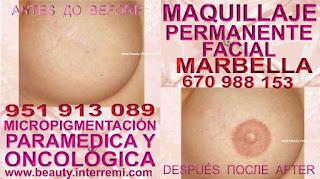 eliminar cicatrices reduccion mamaria Rellenos de la areola mamaria