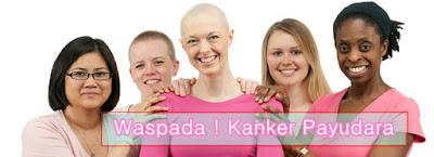 Solusi Terbaik Mengobati Kanker Payudara Tanpa Melakukan Operasi