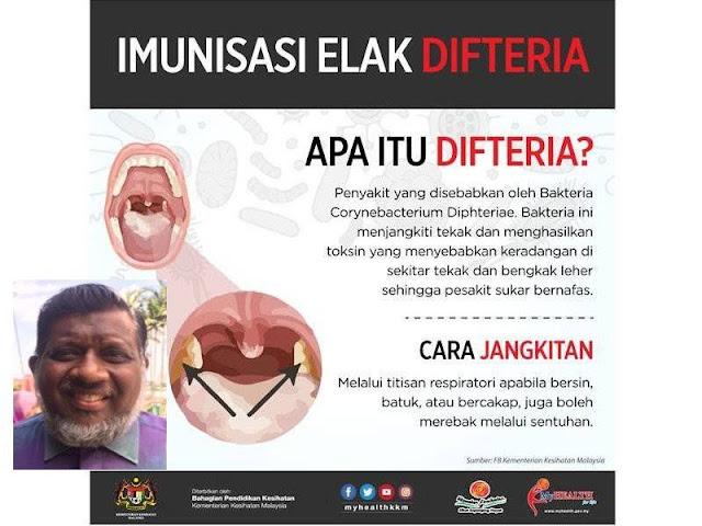 5 Kanak-Kanak Positif Difteria di Johor