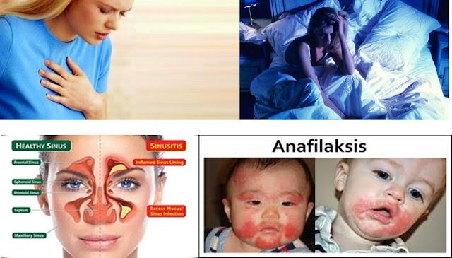 Cara Mengobati Hingga Menyembuhkan Alergi Kulit Menahun Secara Efektif Dan Cepat