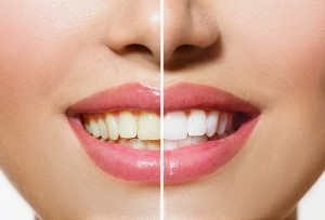 Detox your mouth and clean your teeth with Oil Pulling treatment