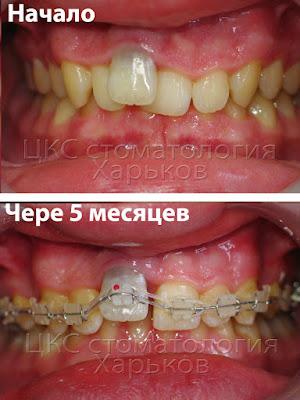 слабые ортодонтические перемещения зубов