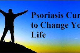 Psoriasis Cures to Change Your Life