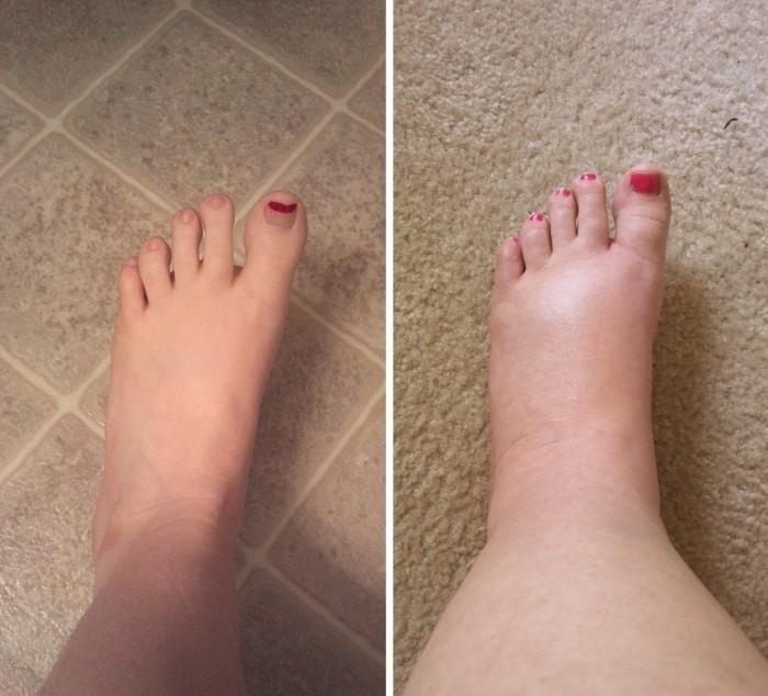 Inchada está parte superior do pé meu