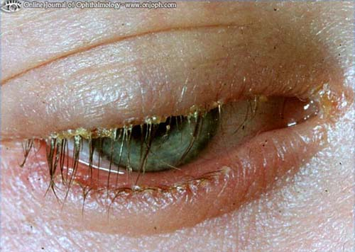 Science Behind The Scenes Eye Infections