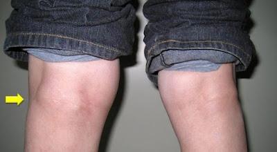 Obat Penghilang Benjolan Di Belakang Lutut