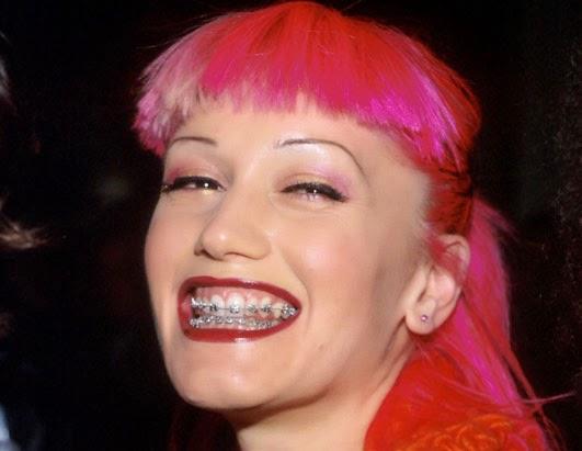 Arango Orthodontics Great Smiles Have No Age Limit