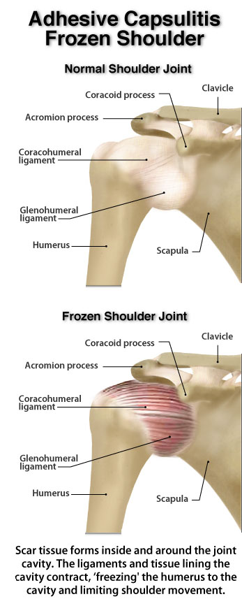 Myo Therapy  U0026 Healthcare Institute  Frozen Shoulder