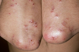 Itchy rashes on both elbows. The rashes are symmetrical, which is one of the characteristics of celiac rash pictures