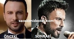 ünlülerin saç ekimi öncesi ve sonrası