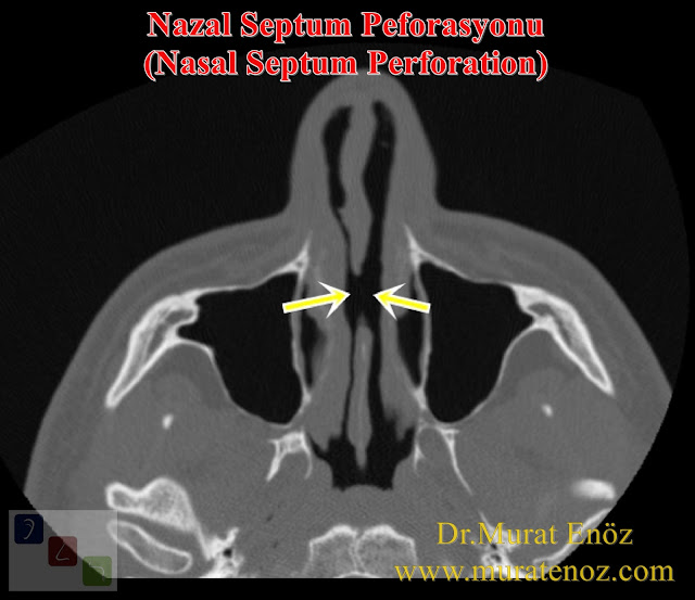 Nasal Septum Perforation, Definition of Nasal Septum Perforation - Classifications of Nasal Septum Perforation - Treatment of Nasal Septum Perforation - Nasal Septum Perforation Causes - Surgical Closure of Nasal Septum Perforations - Nasal Septum Perforation Surgery in Istanbul - Nasal Septum Perforation Treatment in Turkey