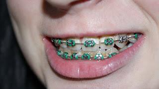 Dampak Negatif Penggunaan Kawat Behel Gigi