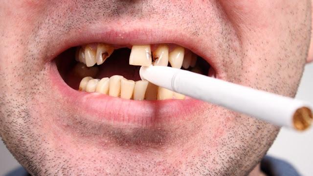 perte de dent