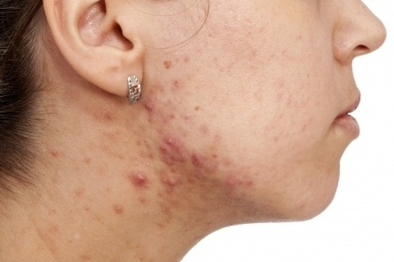 Acne on the Neck Overcome by Easy
