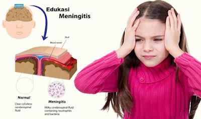 Edukasi Meningitis Agar Tidak Mudah Tertular