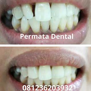 gambar foto sebelum dan susudah proses gigi renggang jarang tonggos di perbaiki dengan veneer