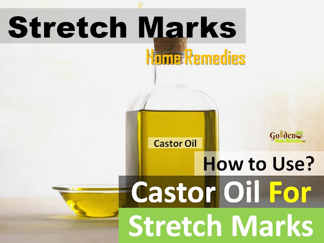 Castor Oil for stretch marks, how to lighten stretch marks fast with Castor Oil, how to get rid of stretch marks, home remedies for stretch marks, remove stretch marks, stretch marks treatment,