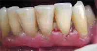 "<Imgsrc =""periodontitis-crónica-disfunción-eréctil-tema.jpg"" width = ""300"" height ""159"" border = ""0"" alt = ""Foto clínica de una periodontitis crónica vinculada a disfunción eréctil."">"