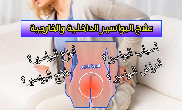 علاج البواسير بدون جراحة - اعراض البواسير- اسباب البواسير - انواع البواسير