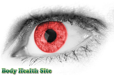 Conjunctivitis diagnosis