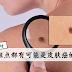 这些斑点都有可能是皮肤癌的前兆,不要忽略了!