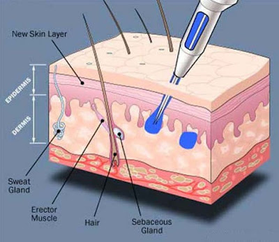 Esquema piel y tinta