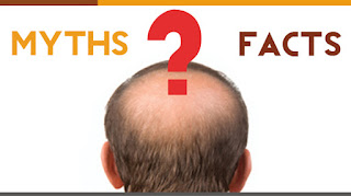 hair loss usa