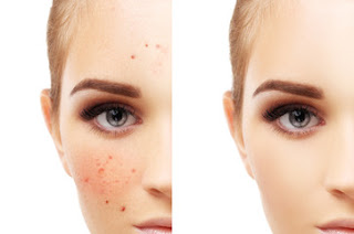 how to get rid of acne,how to remove pimples,acne,how to remove acne scars,how to remove acne,how to get rid of pimples,acne treatment,get rid of acne,remove pimples naturally,how to get rid of acne fast,how to remove pimple marks,how to remove pimple overnight,how to naturally get rid of acne,remove acne scars naturally,how to,how to remove pimple